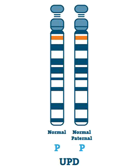 Angelman syndrome type: Uniparental Disomy